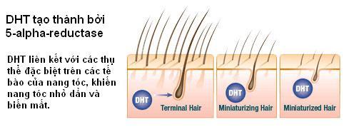 Rụng tóc, hói đầu   phải chữa theo cách khác