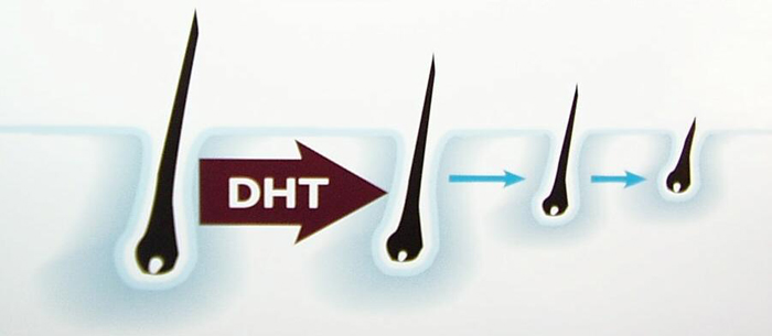 DHT tác động lên tóc như thế nào? 1