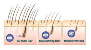 """DHT – """"Thủ phạm giấu mặt"""" của chứng rụng tóc 1"""
