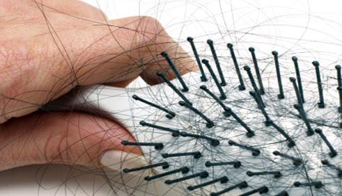 Cách trị bệnh rụng tóc 1