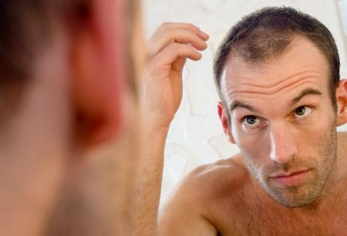 Rụng tóc ở nam giới và các thông tin cần biết 1