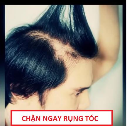 Bí kíp riêng của tôi để tóc sạch nhờn, hết rụng và mọc nhanh lại 1