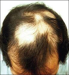 Nguyên nhân gây rụng tóc từng mảng 1