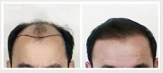 a. Cấy tóc 1