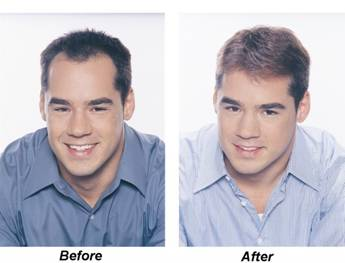Các phương pháp điều trị bệnh trụng tóc