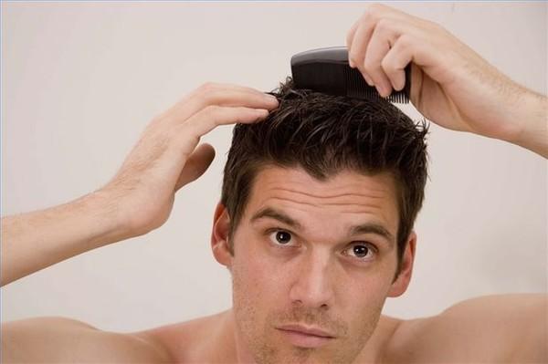 Bí quyết giảm rụng tóc cho phái nam 1