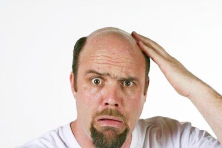 Hói đầu và những điều chưa biết? 1