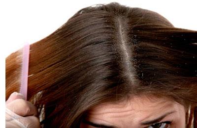 Nguyên nhân tóc bị gàu và phương pháp chữa gàu 1