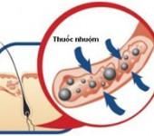 Thuốc nhuộm tóc độc hại như thế nào? 1
