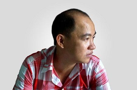 Hói đầu nam giới– Chữa thế nào thì tốt?