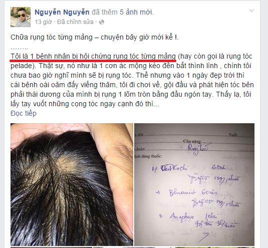 Rụng tóc từng mảng - bệnh khó chữa hay do bạn chưa tìm đúng cách? 1