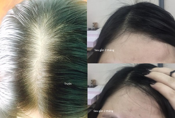 Mới: Bà mẹ trẻ tiết lộ bí quyết hết rụng tóc chỉ sau 2 tháng 1