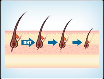 Tác động của DHT như thế nào lên chứng rụng tóc, hói đầu? 1