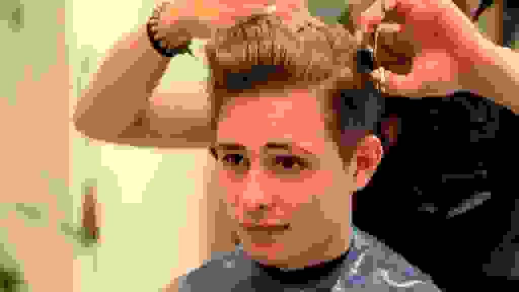 Ám ảnh vì tóc rụng nhiều, hói đầu sớm 1