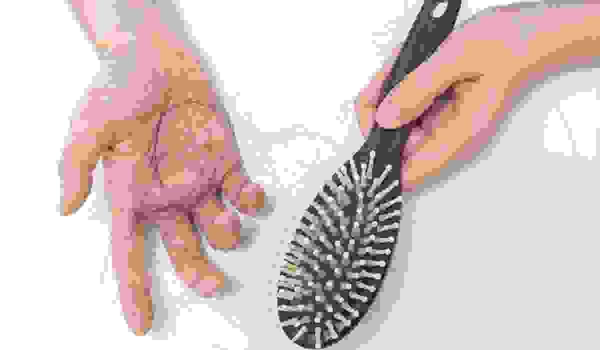 """""""Bóc mẽ"""" 5 nguyên nhân rụng tóc nhiều mà bạn không ngờ đến 1"""